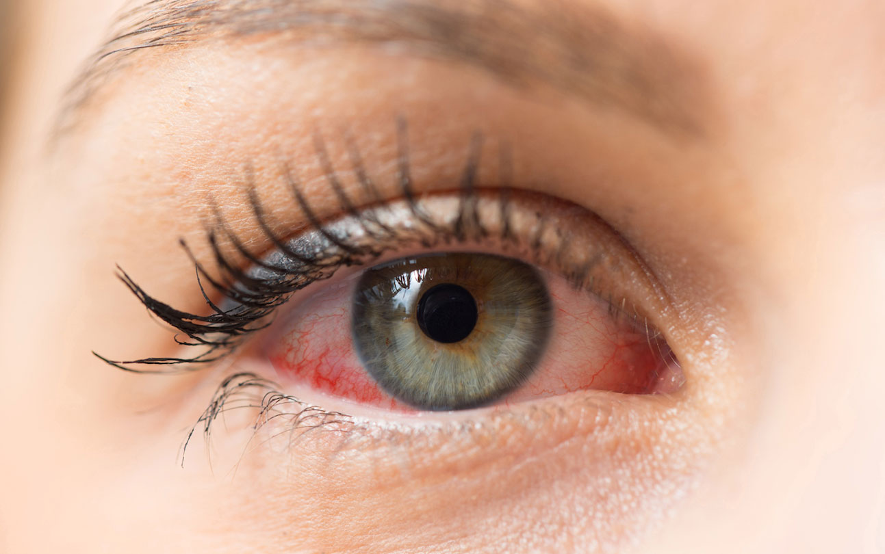 Protege tus ojos de las alergias primaverales